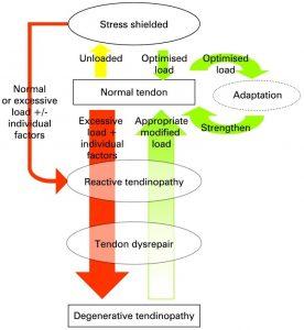 how-to-treat-tendinopathy